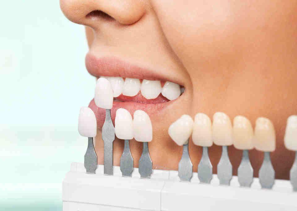 Stomatologia estetyczna -gabinet stomatologiczny klinika pięknego uśmiechu